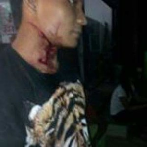 Korban begal di Kabupaten Paser. (Rapal JKN - Hello Borneo)