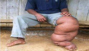 Penderita kaki gajah (Subur Priono - Humas Setkab Penajam Paser Utara)